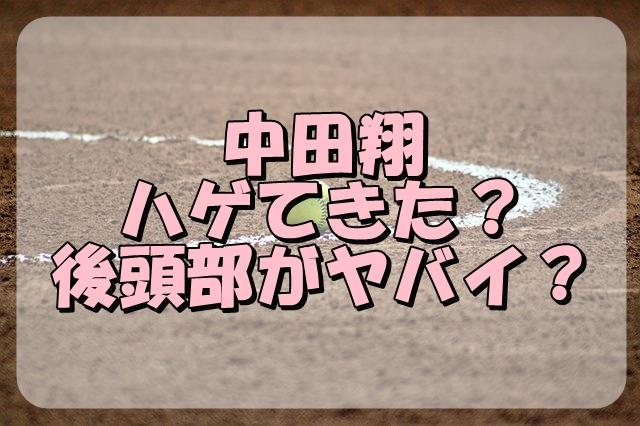 中田翔がハゲてきた?後頭部がヤバイと言われるようになったきっかけは?